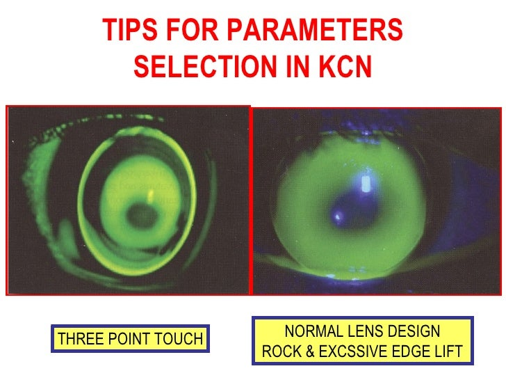 rgp contact lenses fitting guide