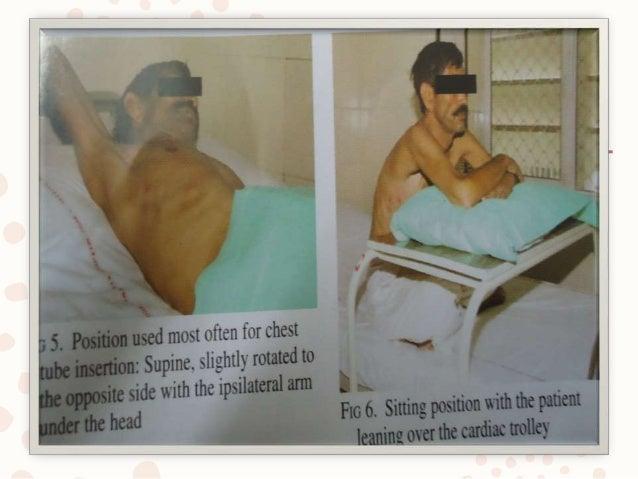 usg guided pleural fluid aspiration